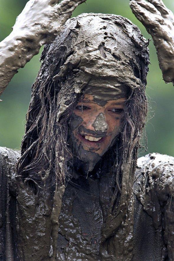 Андрогенное выпадение волос у женщин форум