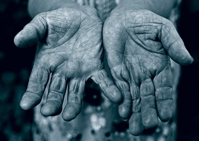 Как выглядят руки различных людей?